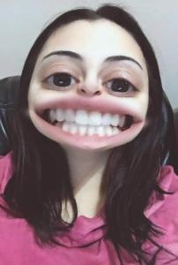 wisdom teeth snap